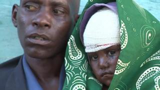 """""""Eu vi eles cortando ela com um facão"""": a tragédia humanitária em meio a conflito no Congo"""