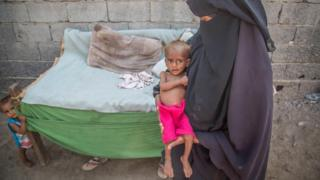 Nusair, 13 months old, in his house in Hodeidah, Yemen, with his mother Suad