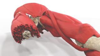 Model of bomb blast victim