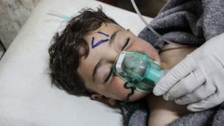 A Syrian child receives treatment after an alleged chemical attack on Khan Sheikhun in 2017