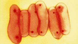 _100541073_tb_spl_b2200966-mycobacterium_tuberculosis_bacteria.jpg