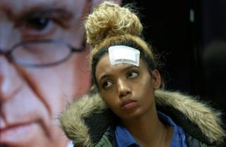 Gabriella Engels, who claims to have been assaulted by Grace Mugabe, looks on during a news conference in Pretoria, South Africa, August 17, 2017.