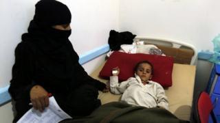 طفل يمني يعاني من الكوليرا
