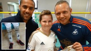 Callum with Wayne Routledge (l) and Lee Trundle (r) and his Swansea City branded prosthetic legs (inset)
