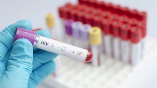 Muestra de VIH positivo.