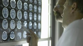 Two doctors look at MRI scans