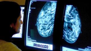 Mamogram incelemesi