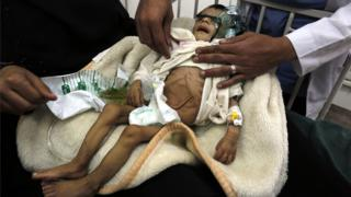 Child being treated for malnutrition in Sanaa.