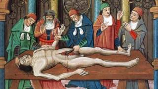 Всткртие тела. Средневековая гравюра