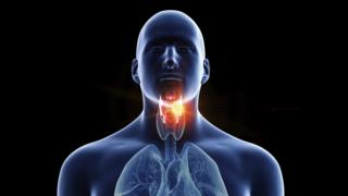 Illustration of a man's laryngeal cancer