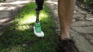 مصنوعی ٹانگ