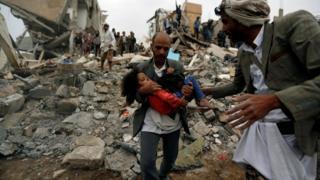 الوضع في اليمن - بحسب زيد بن رعد - يزداد سوءا