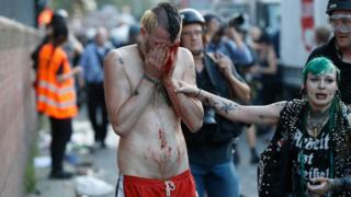 Manifestante ensangrentado en Hamburgo.