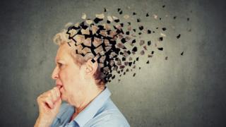 电脑图:老人的脑