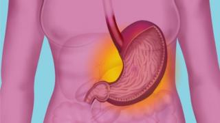 Peptic ulcer fit lead to stomach cancer if dem no treat am well.