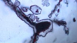 Bu demir ve lif kümesi modern zamandaki mikroplara benziyorlar