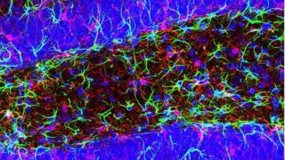 Microglia are immune cells present in the brain