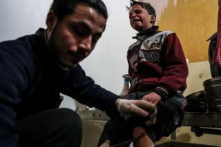 ناشطون معارضون يفيدون بتعرض 10 بلدات في الغوطة الشرقية للقصف