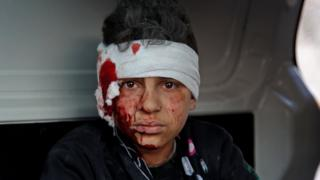 An injured Syrian boy sits inside a vehicle after a reported government air strike in Maarat Misrin, north-western Syria, on 25 February 2020