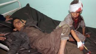 غارة اليمن