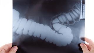 bowel x-ray