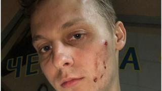 Олександр Шуфрич після інциденту