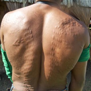 Man in Womburn with back scarred to resemble a crocodile's hide