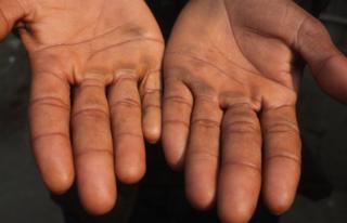 Abdul Alim shows his calloused palms