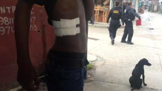Homem ferido por disparo da PM