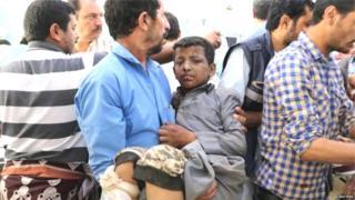 सादा प्रांतात झालेल्या हल्ल्यात जखमी झालेला मुलगा