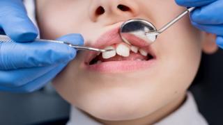 Child having teeth inspected
