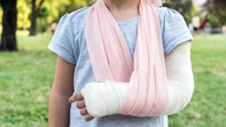 Una niña con el brazo enyesado