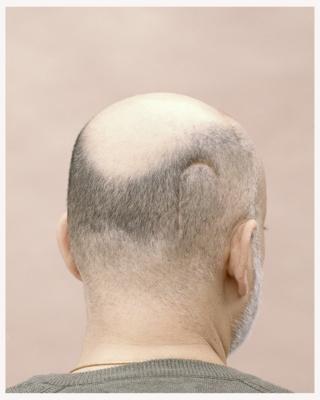 Man with a scar