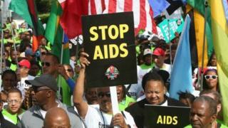 Onu ivuga ko abantu bagendana umugera wa VIH barenga imiliyoni 7 muri Afrika yapfo.