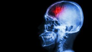 Stroke in the brain