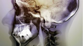 Stroke angiogram