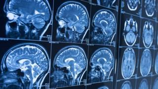 Technology brain scan