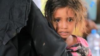 طفلة في اليمن