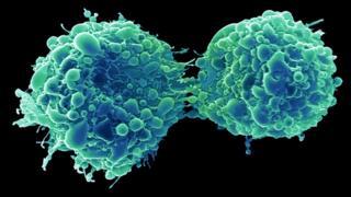 Dividing bladder cancer cells