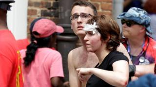 Una mujer herida luego de que un automóvil embistiera contra un grupo de manifestantes.