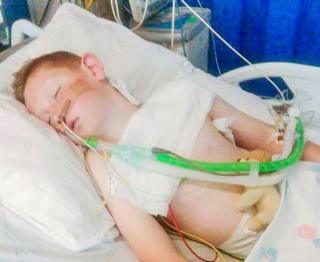 Cameron Dickson, nine, was treated in intensive care