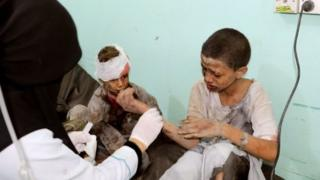 ஏமன் போர்: சௌதி கூட்டணியின் வான் தாக்குதலில் 43 பேர் உயிரிழப்பு