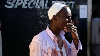 An injured Somali shopkeeper looks on outside his shop in the South African township of Soweto