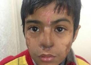 Arun Patel perdió la nariz a causa de una neumonía.