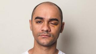 Sérgio Silva em 2013, após perder o olho esquerdo, atingido por tiro de bala de borracha disparado por policial em manifestação