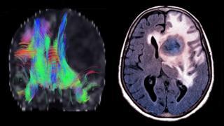 صورة لفحص الدماغ
