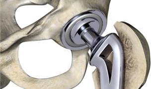 Тазобедренный имплантат