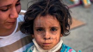 Una niña herida en Mosul