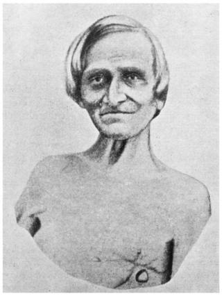 Alexis St. Martin
