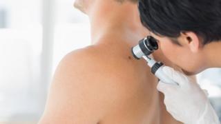 doctor examines a mole